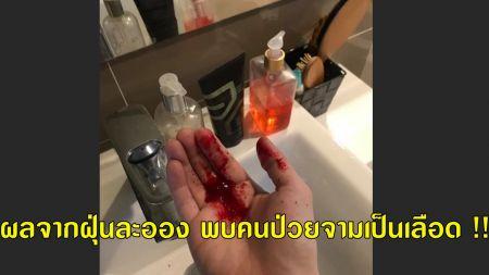 ผลจากฝุ่นละออง พบคนป่วยจามเป็นเลือด !!