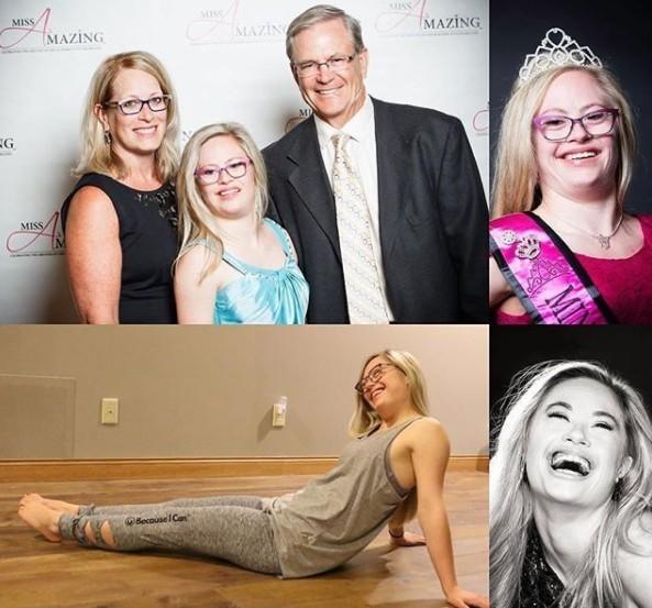 Mikayla Holmgren หญิงสาวโรคดาวน์ซินโดรมคนแรก ที่จะได้เข้าร่วมประกวด Miss USA