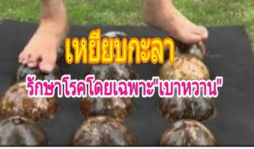 ทึ่ง!ภูมิปัญญาไทย'เหยียบกะลารักษาโรค 'โดยเฉพาะเบาหวาน