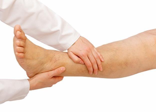 'เท้าบวม' ส่งสัญญาณ 7 โรคร้าย