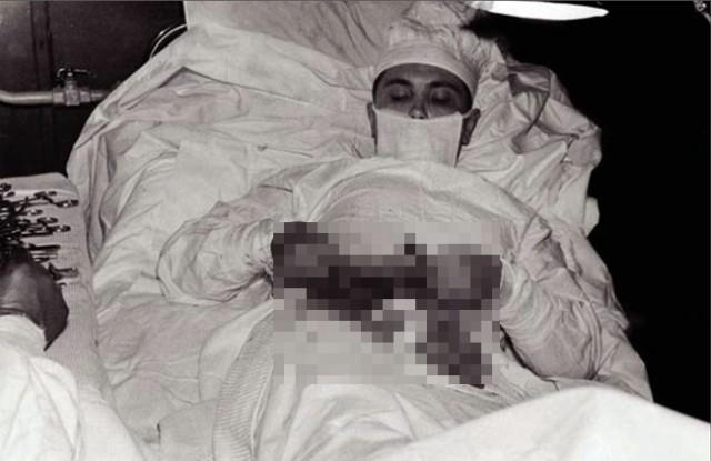 วงการแพทย์ต้องสั่นสะเทือน !! หมอชาวรัสเซียใจเด็ด 'ผ่าตัดตัวเอง' เพื่อเอาไส้ติ่งออกมา