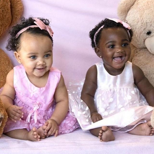 ฝาแฝดที่เกิดมาพร้อมสีผิวที่ต่างกัน ความงดงามที่แตกต่างบนโลกใบนี้