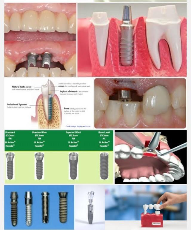 เจ๋งจริง!ทันตแพทย์มช.พัฒนารากฟันเทียมราคาถูก-ใส่เสร็จในครั้งเดียว