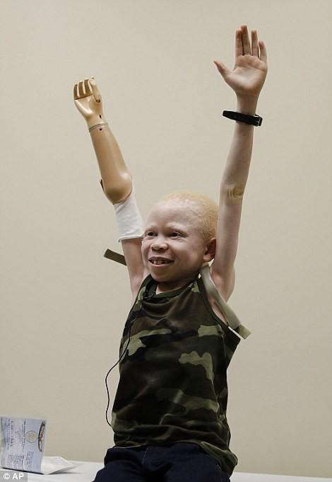 เหล่าเด็กๆ ผิวเผือกแทนซาเนีย ที่ถูกตัดแขนเพื่อนำไปขาย ได้รับอวัยวะเทียมทดแทนอีกครั้ง